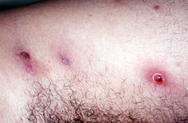 MRSA Methicillin Resistant Staphalococcus - Staph Infection - Carbuncles